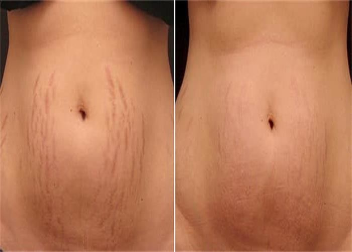 pl15589164-stretch_marks_wrinkle_laser_machine_with_fiber_erbium_glass_fractional_laser_1550nm.jpg